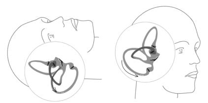 Øresten | Høreforeningen